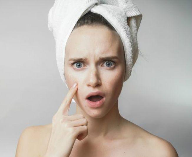 jak usunąć przebarwienia po trądziku